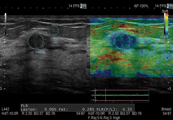 Real-time Tissue Elastography (RTE) / Breast