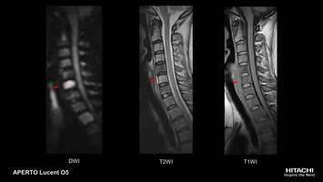 Spine MRI scan of suspected cervical spondylosis. Diffusion shows increased signal in multiple vertebras suggesting osteomyelitis.