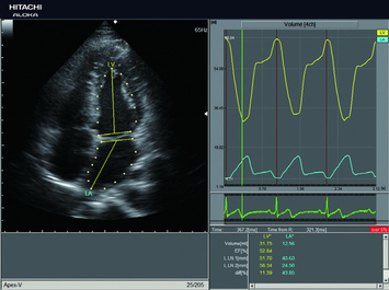 Quantification du volume intracardiaque - 2DTT