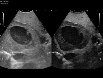 Contrast enhanced ultrasound of large liver tumour