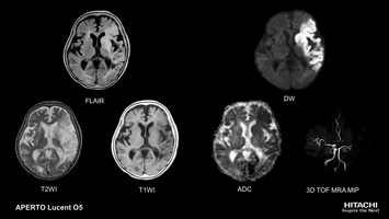 Brain MRI Scan of cerebral infarction. DWI with automatic ADC Map calculation shows affected brain tissue, 3D TOF angiography depicts occlusion of left-middle cerebral artery.