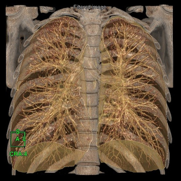 Coloured 3D Volume Rendering reconstruction with cut-plane option allows visualization of the lung fields for pneumonia.