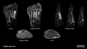 Foot MRI study of fatigue fracture of left 1st, 3rd and 4th metatarsal bones. Imaged with MultiContrast FatSep sequence with PD and T2 contrast.