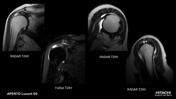 Shoulder MRI scan of rotator cuff tear, imaged with RADAR T2 and T2 FatSat. Central anatomy positioning supports excellent fat saturation.