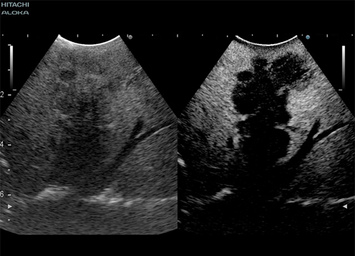 Intraoperative contrast enhanced ultrasound of a large liver metastasis