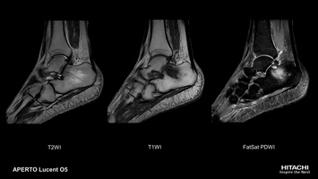 Ankle MRI scan of suspected cellulitis / osteomyelitis. Central anatomy positioning supports spectral fat saturation.