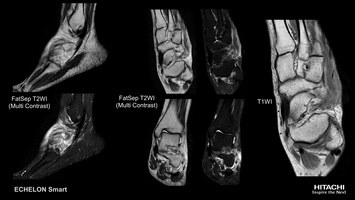 Ankle MRI scan of a sprain, imaged with MultiContrast FatSep.