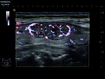 Fine Flow in complex thyroid nodule