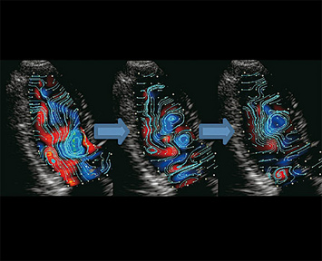 VFM - Flow Patterns in an apical long axis view - Rapid inflow phase, slow inflow phase 1, slow inflow phase 2 (left to right)