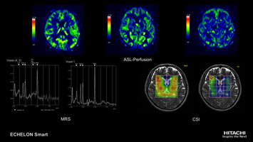 Brain MRI study imaged with non-contrast ASL (Arterial Spin Labeling) perfusion and multi-voxel CSI spectroscopy.