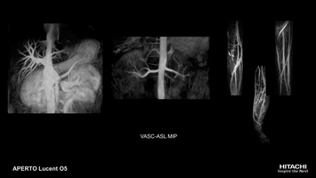 Non-contrast vascular MRI scan of portal vein, renal artery and upper limb artery with VASC-ASL.