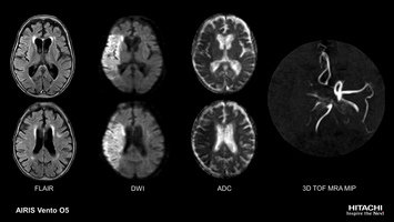 Brain MRI Scan of acute cerebral infarction. DWI with automatic ADC Map calculation shows affected brain tissue, 3D TOF angiography depicts occlusion of right middle cerebral artery.
