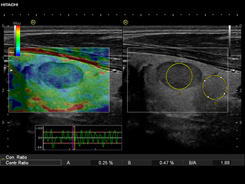 RTE and strain ratio measurement of thyroid nodule