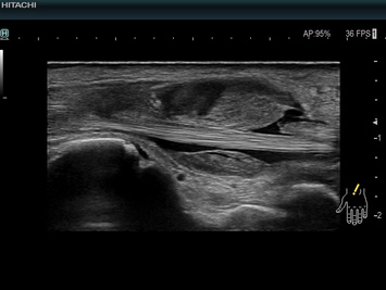 Wrist ultrasound showing synovial proliferations due to trauma