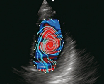 VFM - Apical four-chamber view - blood flow streamlines in diastole