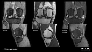 Knee MRI scan of medial meniscus horizontal tear in standard sequences.