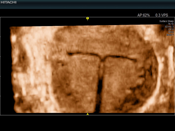 Ultrasound image of intrauterus device (IUD) for contraception (CMPR)