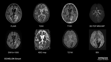 Brain MRI scan of sub-acute cerebral infarction, imaged with non-contrast TOF and BSI (Blood Sensitive Imaging).