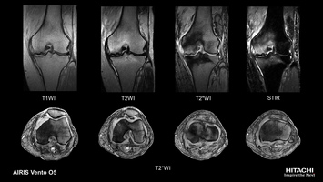 Knee MRI scan of left joint bone necrosis in detail