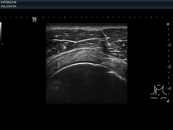 New 4G CMUT clearly images the shoulder supraspinatus , powered by the high performance  CMUT technology.