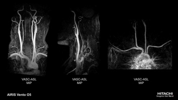 Non-contrast angiography MRA scan of  carotid and aortic arch with VASC-ASL.