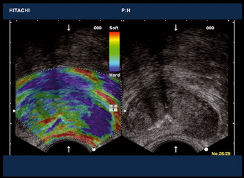 Real-time Tissue Elastography (RTE)